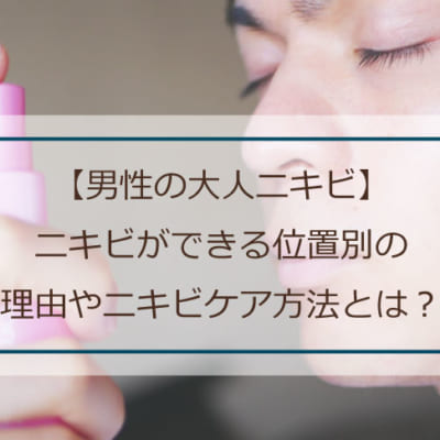 【男性の大人ニキビ】ニキビができる位置別の理由やニキビケア方法とは?